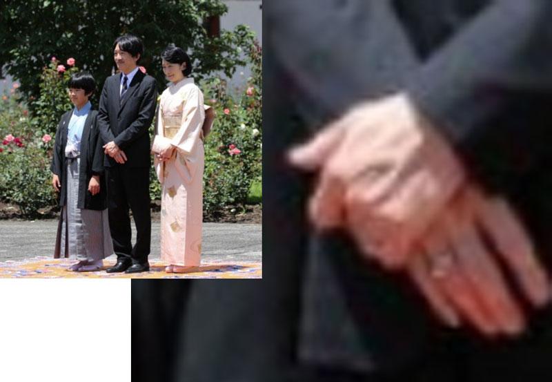 「秋篠宮 静脈 でれでれ草」の画像検索結果